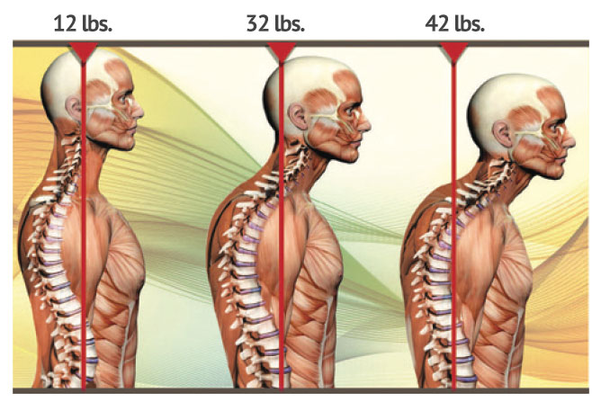 Impacts of Posture